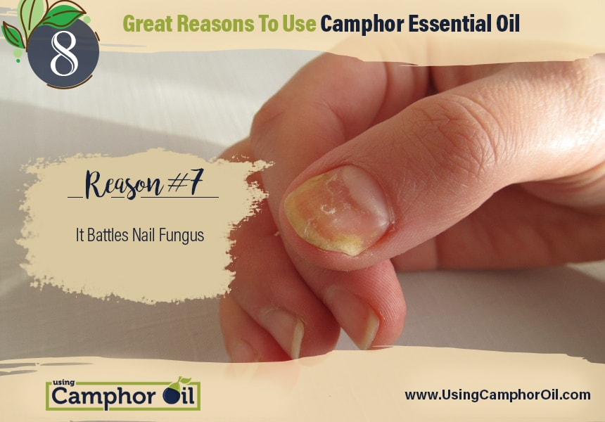 Using Camphor Oil | 8 Great Reasons To Use Camphor Essential Oil